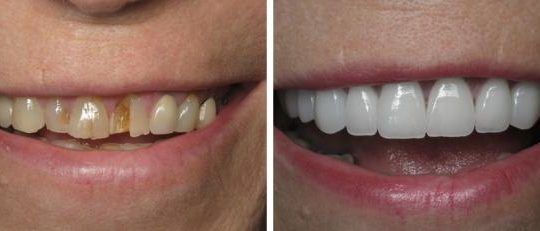 Smile Makeovers | Pearl Harbor Premier Dental Palm Harbor in FL Dentist near me