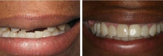 Filling teeth Before & After Picture | Pearl Harbor Premier Dental Palm Harbor in FL Dentist near me in 34684 17
