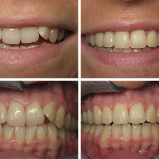 Teeth Before & After | Pearl Harbor Premier Dental Palm Harbor in FL Dentistry near me in 34684 34685
