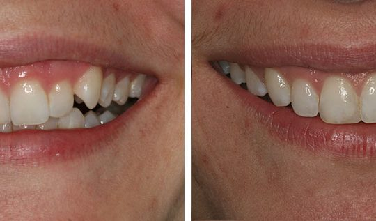 Teeth Before & After | Pearl Harbor Premier Dental Palm Harbor in FL Dentistry near me in 34684