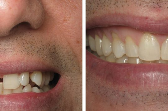 Teeth Before & After | Pearl Harbor Premier Dental Palm Harbor in FL Dentistry near me in 34684 6