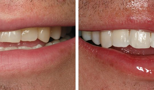 Teeth Before & After | Pearl Harbor Premier Dental Palm Harbor in FL Dentistry near me in 34684 9