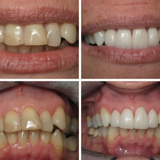Six Month Braces Teeth Before & After | Pearl Harbor Premier Dental Palm Harbor in FL Dentistry near me in 34684 5