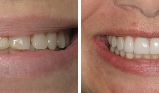 Veneers Before & After Picture | Six Month Braces Pearl Harbor Premier Dental Palm Harbor in FL Dentistry near me in 34684