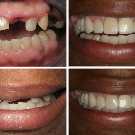 Filling teeth Before & After Picture | Dental Crowns Pearl Harbor Premier Dental Palm Harbor in FL Dentist near me