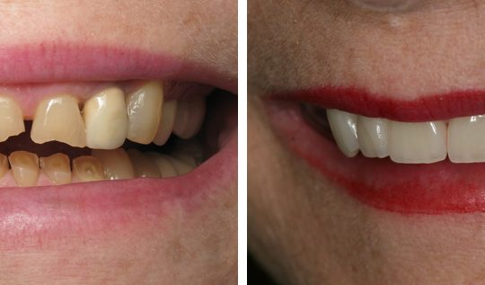 Filling teeth Before & After Picture | Pearl Harbor Premier Dental Palm Harbor in FL Dentist near me in 34684 34684