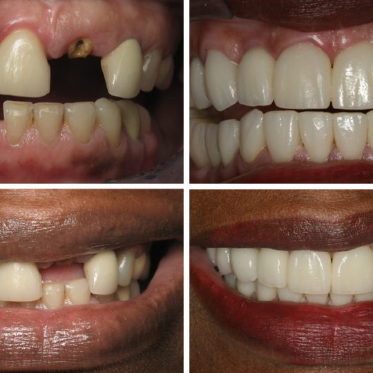 Filling teeth Before & After Picture | Dental Crowns Pearl Harbor Premier Dental Palm Harbor in FL Dentist near me in 34685