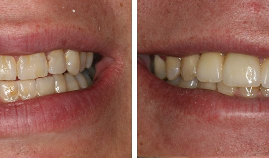 Filling teeth Before & After Picture | Pearl Harbor Premier Dental Palm Harbor in FL Dentist near me in 34684