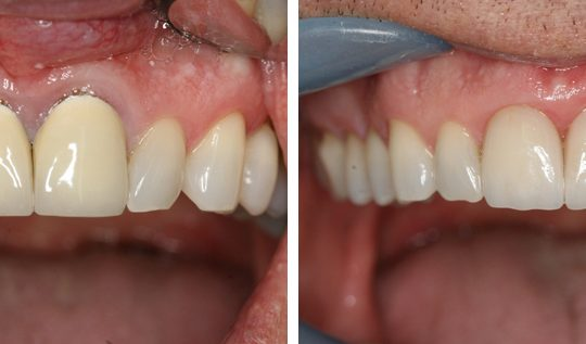 Before & After Picture | Pearl Harbor Premier Dental Palm Harbor in FL Dentist near me in 34684
