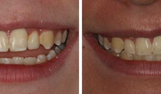 Veneers Before & After Picture | Six Month Braces Pearl Harbor Premier Dental Palm Harbor in FL Dentistry near me in 34684 3