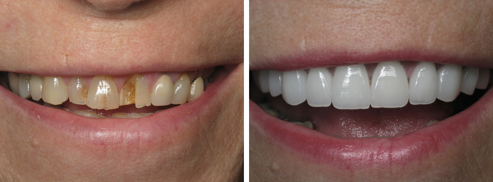 Smile Makeovers Broken Teeth Before and After | Pearl Harbor Premier Dental Palm Harbor in FL Dentistry near me in 34684 4
