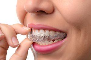 Invisalign in Palm Harbor | Pearl Harbor Premier Dental Palm Harbor in FL Dentist near me in 34684 34685